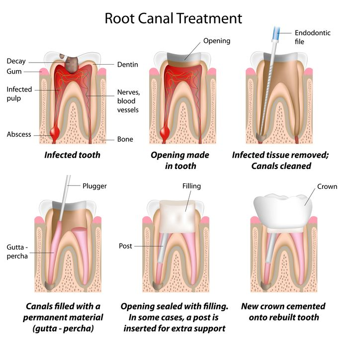 root canal diagram Dental Care Center