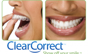 ClearCorrect with retainer Dental Care Center
