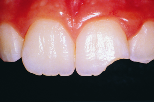 chipped tooth Dental Care Center