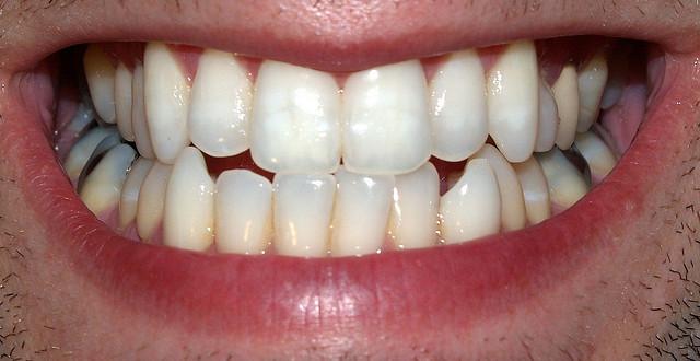 smile Dental Care Center