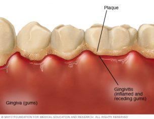 gingivitis, gums